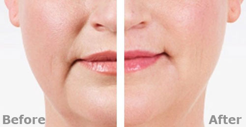 Wrinkle Relaxing Treatment Areas - The Parome Clinic